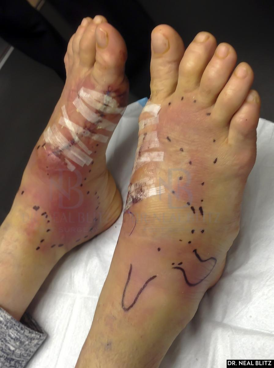 Plastic Foot Surgery Before And After photo - 1