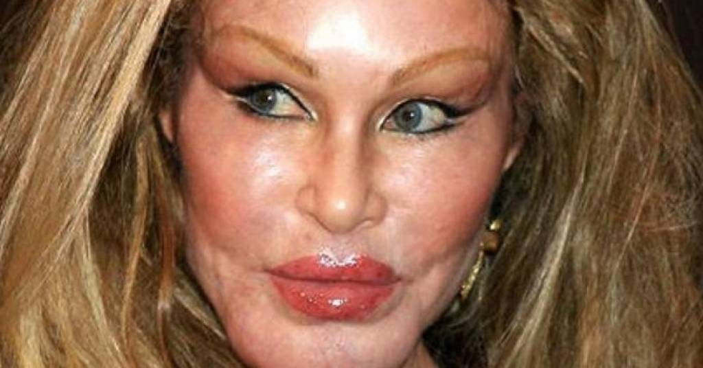 Plastic Surgery Addiction Lady Before And After photo - 1