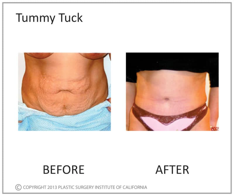 Plastic Surgery After Weight Loss Before And After Pictures photo - 1