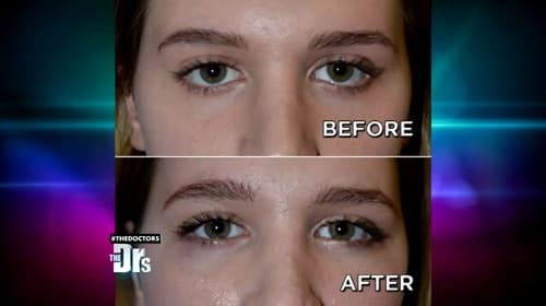 Plastic Surgery Almond Eyes Before After photo - 1