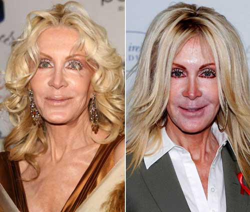 Plastic Surgery Bad Before And After photo - 1