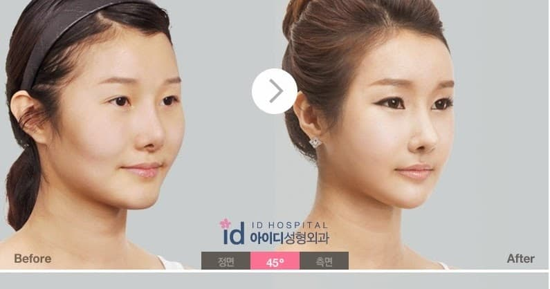 Plastic Surgery Barbie Before And After photo - 1