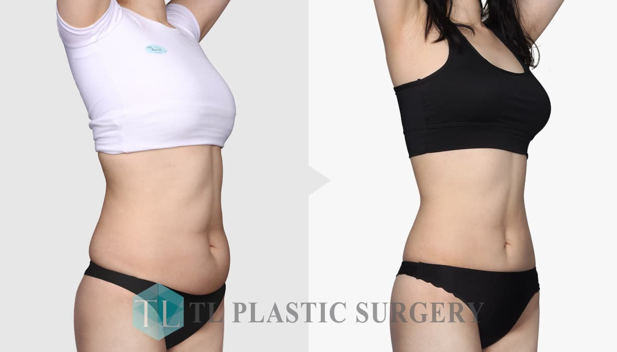 Plastic Surgery Before After photo - 1