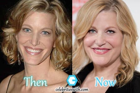 Plastic Surgery Before After Worse photo - 1