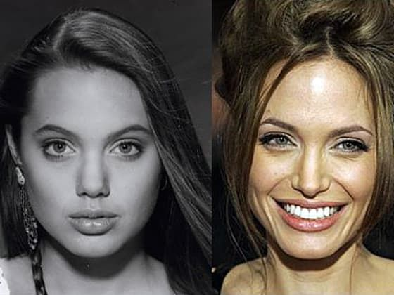 Plastic Surgery Before And After Angelina Jolie photo - 1