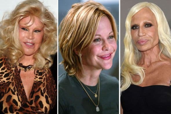 Plastic Surgery Before And After Badf photo - 1
