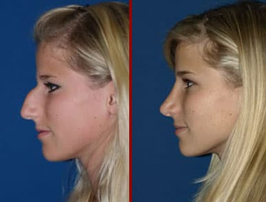 Plastic Surgery Before And After Beak Look Nose photo - 1