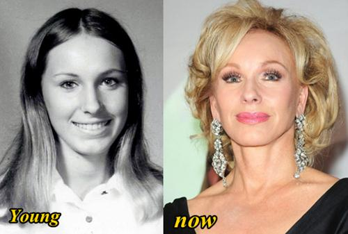 Plastic Surgery Before And After Black photo - 1