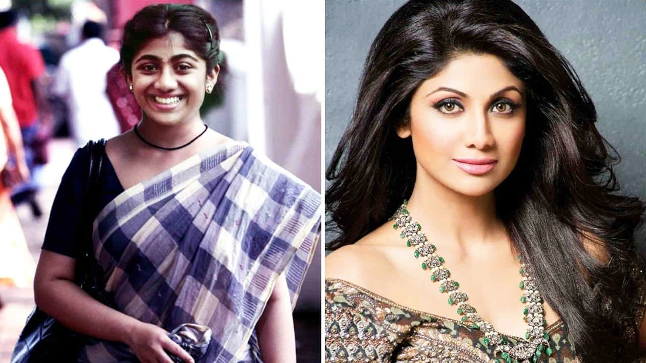 Plastic Surgery Before And After Bollywood Actress photo - 1