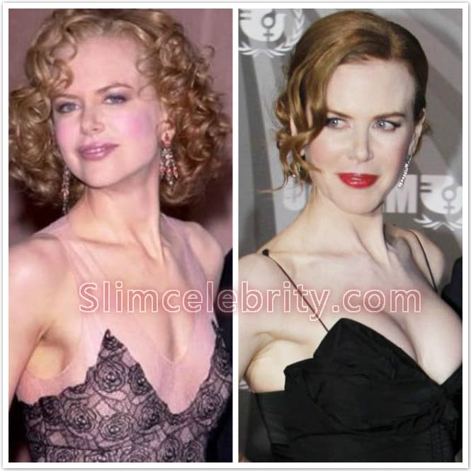 Plastic Surgery Before And After Breast photo - 1