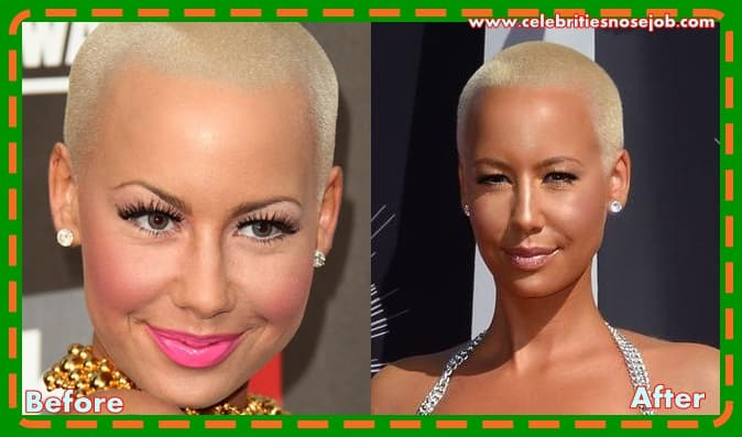 Plastic Surgery Before And After Breast Augmentation photo - 1