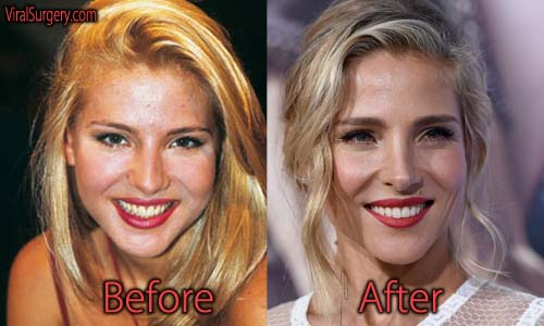 Plastic Surgery Before And After Celebrity photo - 1