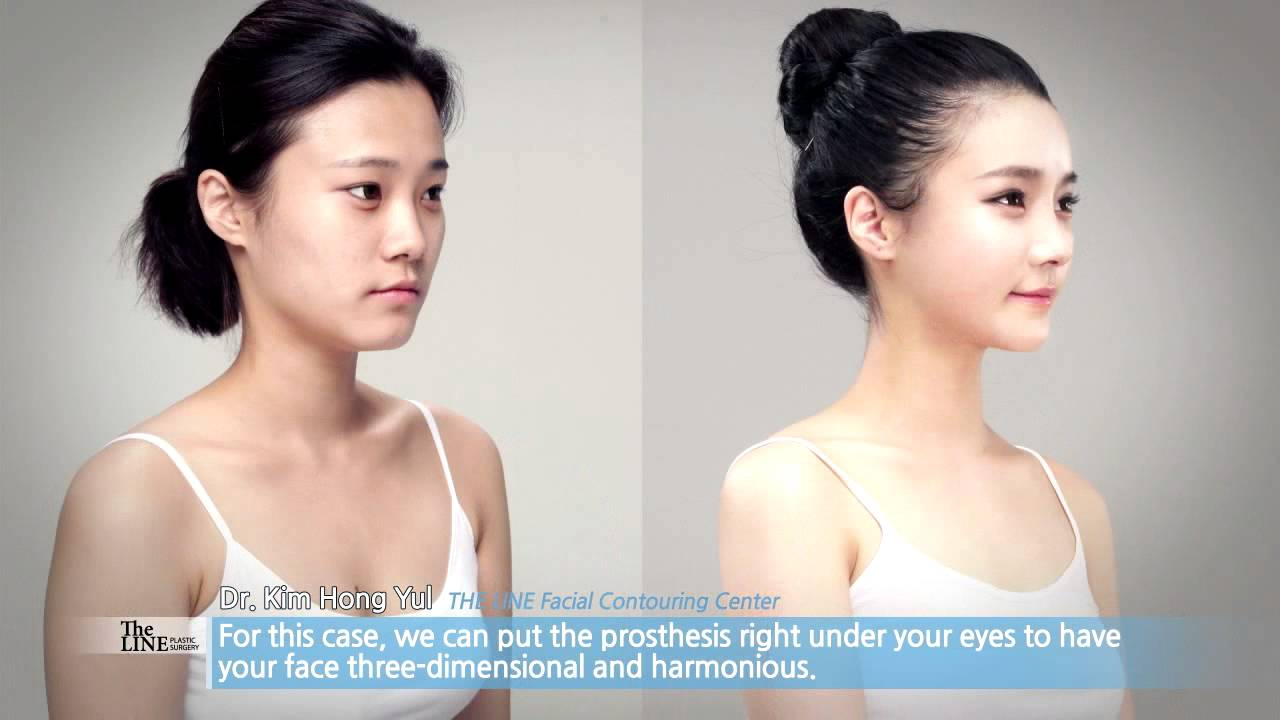Plastic Surgery Before And After Cheek Implants photo - 1