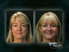 Plastic Surgery Before And After Discovery Health photo - 1