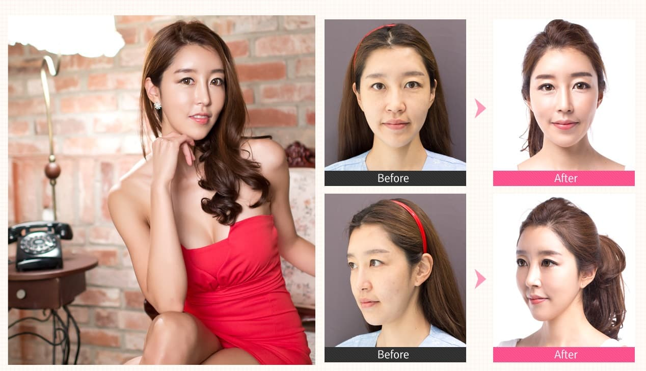 Plastic Surgery Before And After Eyes photo - 1