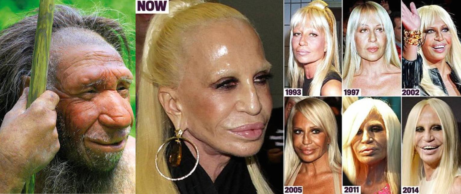 Plastic Surgery Before And After Fails photo - 1