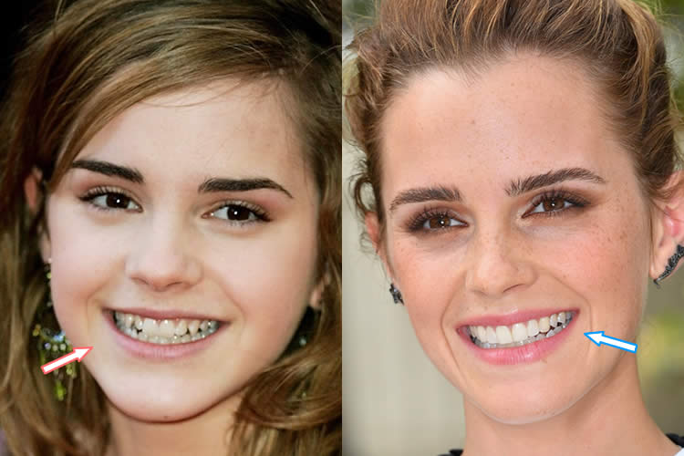 Plastic Surgery Before And After Famous photo - 1