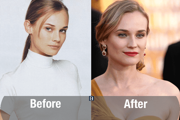 Plastic Surgery Before And After Female photo - 1