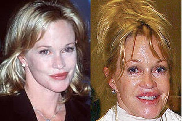 Plastic Surgery Before And After Gone Wron G photo - 1