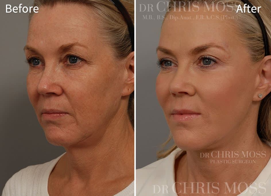 Plastic Surgery Before And After Imaging photo - 1