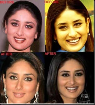 Plastic Surgery Before And After Lollywood photo - 1