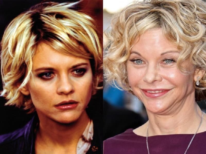 Plastic Surgery Before And After Photos Meg Ryan photo - 1