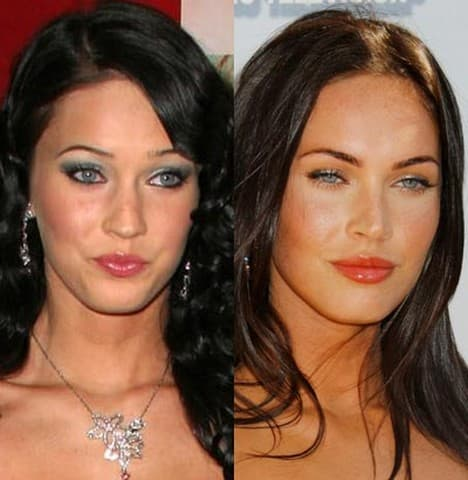 Plastic Surgery Before And After Success photo - 1