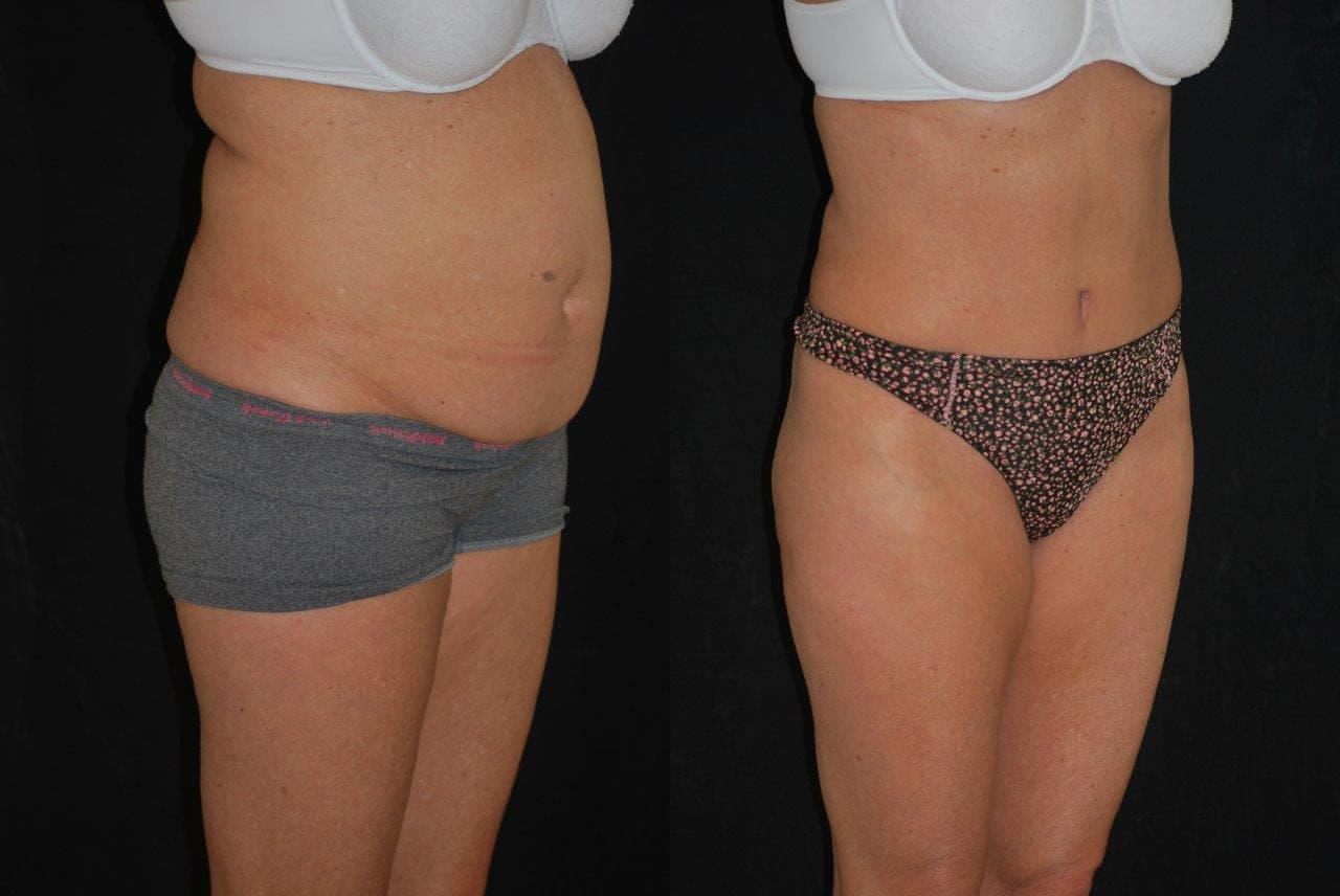 Plastic Surgery Before And After Tummy Tuck photo - 1