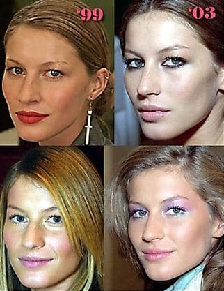 Plastic Surgery Before And After Ugly Celebrities photo - 1