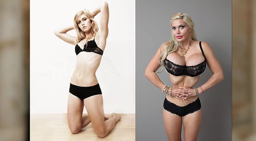 Plastic Surgery Before And After Vagina photo - 1