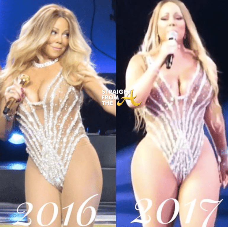 Plastic Surgery Before And After Weight Loss photo - 1