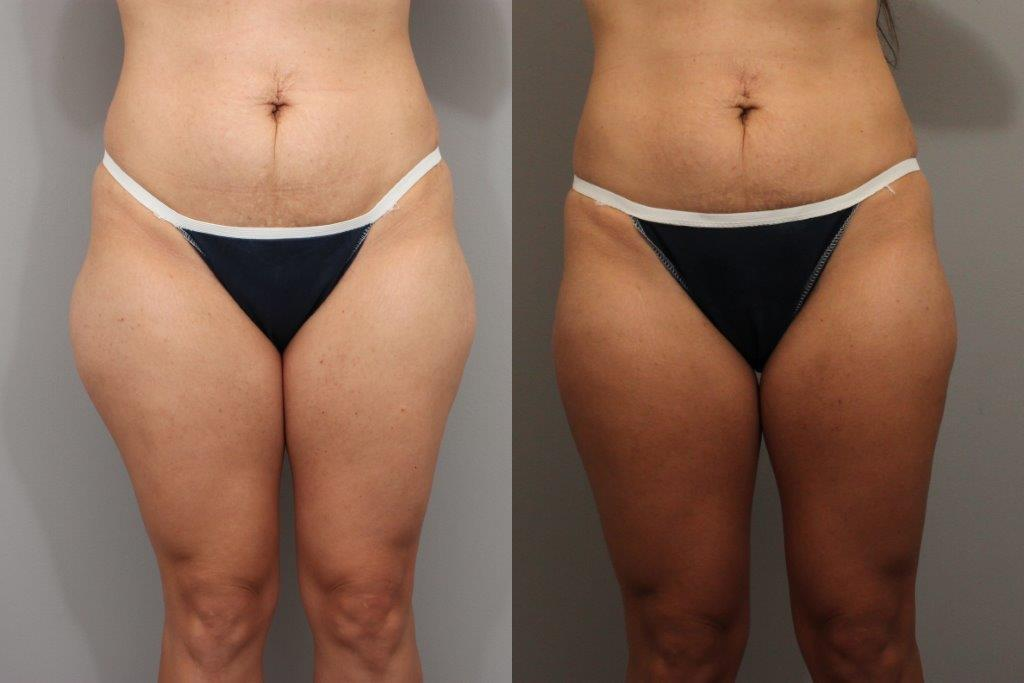 Plastic Surgery Before And Afters photo - 1