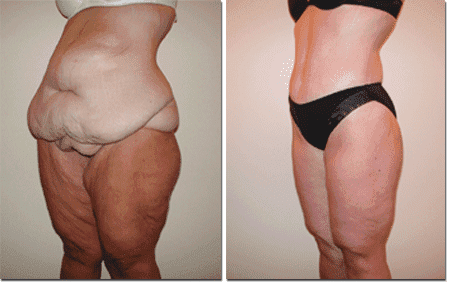 Plastic Surgery Body Lift Before And After photo - 1