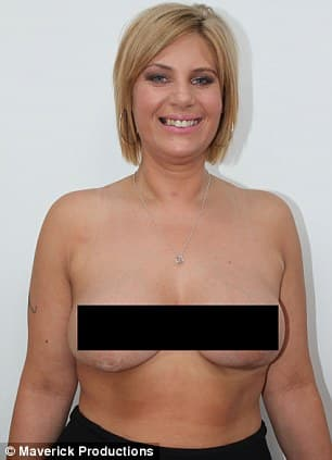 Plastic Surgery Boob Job Before After Naked photo - 1