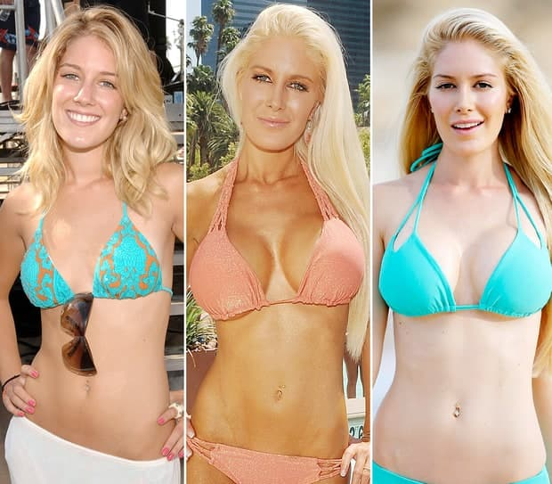 Plastic Surgery Boob Job Before After Shirtless photo - 1