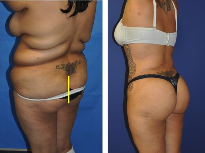 Plastic Surgery Brazilian Butt Lift Before After photo - 1