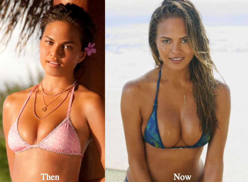 Plastic Surgery Breast Augmentation Before And After Photos photo - 1