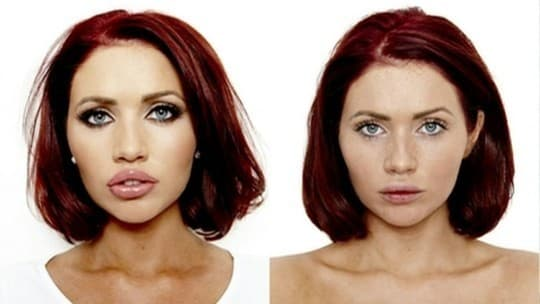 Plastic Surgery Breast Before And After photo - 1