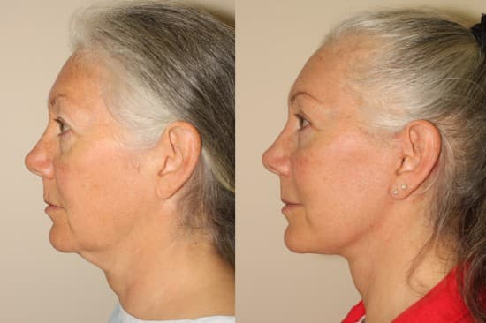 Plastic Surgery Change Face Shape Before After photo - 1