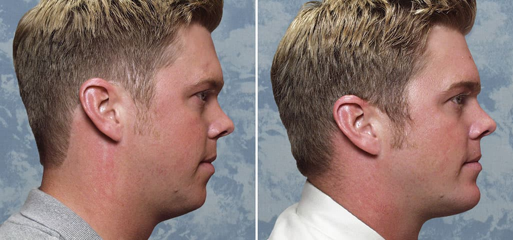Plastic Surgery Chin Implants Before And After photo - 1