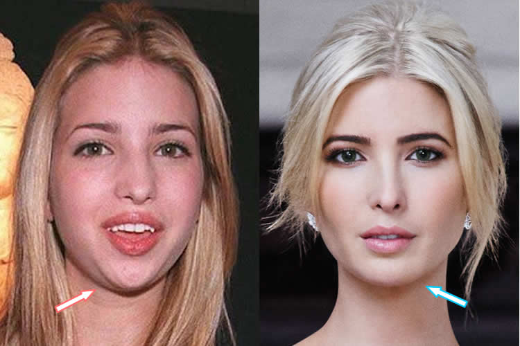 Plastic Surgery Chin Reduction Before And After photo - 1