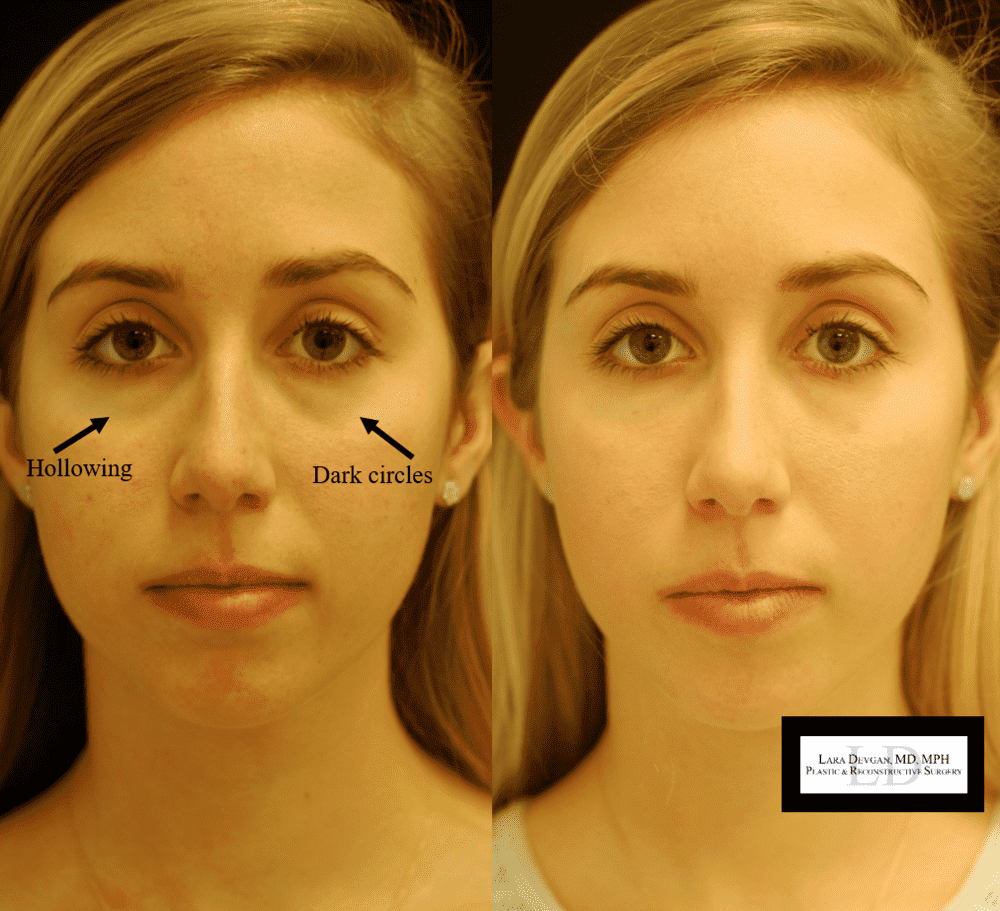 Plastic Surgery Dark Circles Before And After photo - 1