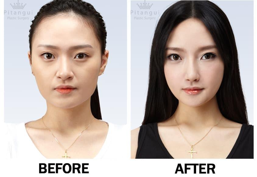 Plastic Surgery Dimple Korea Before After Best photo - 1