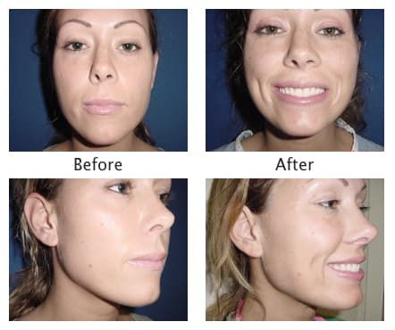 Plastic Surgery Dimples Before And After photo - 1