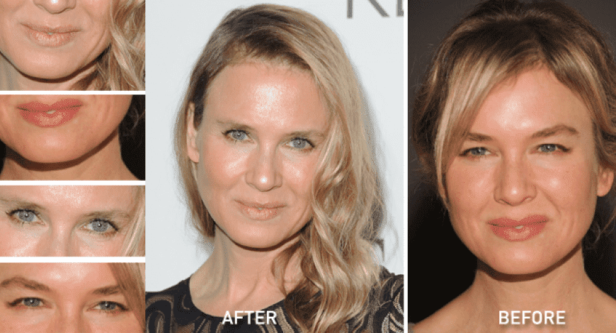 Plastic Surgery Disasters Before And After Pictures photo - 1