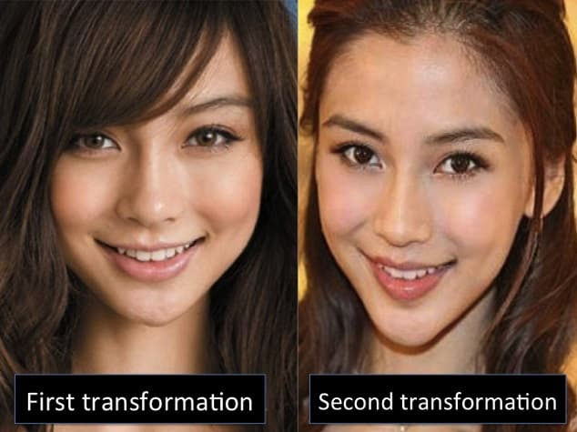 Plastic Surgery Extreme Difference Before And After photo - 1