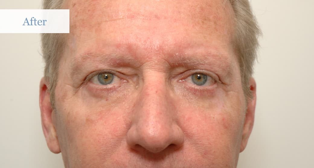 Plastic Surgery Eye Bags Before After photo - 1