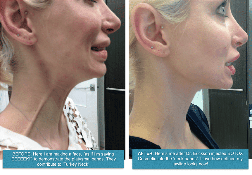 Plastic Surgery Face Contouring Before And After photo - 1
