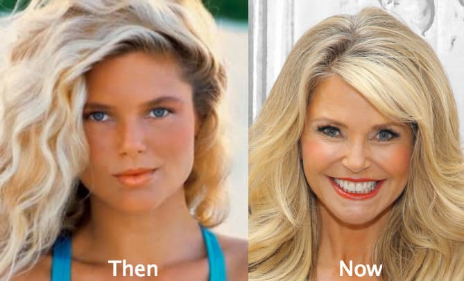 Plastic Surgery Face Lift Before After photo - 1