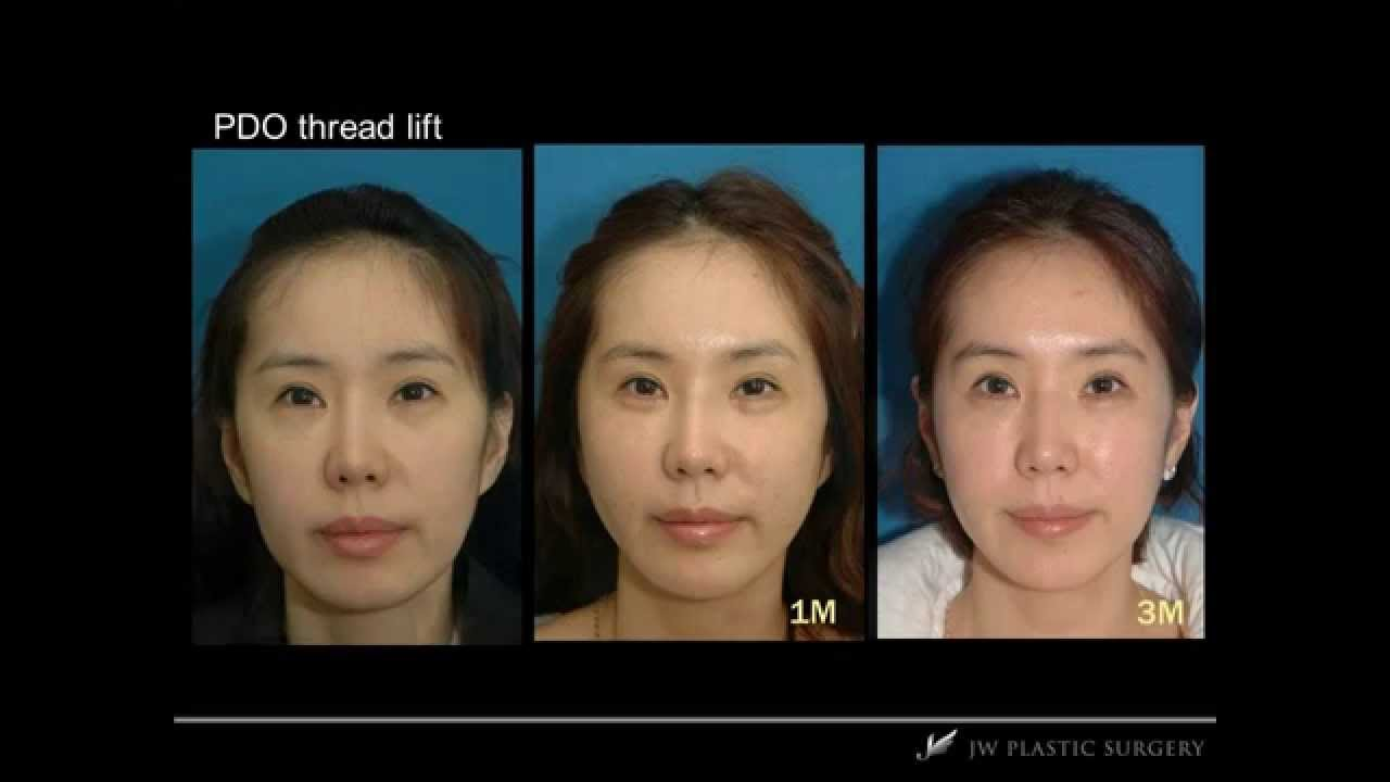 Plastic Surgery Face Lift Before And After photo - 1